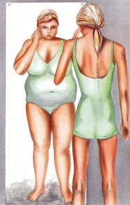 Anorexia-in-the-mirror